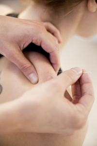 acupuncture_7231